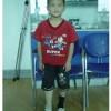 儿童大腿假肢