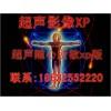 B超工作站软件/超声影像工作站彩超软件,彩超工作站