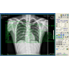 X光机、CR、DR、数字胃肠医学影像工作站